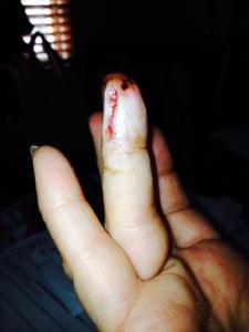 Markay's Finger